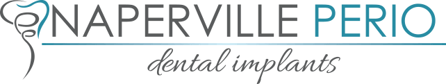 Naperville Perio - Dental Implants