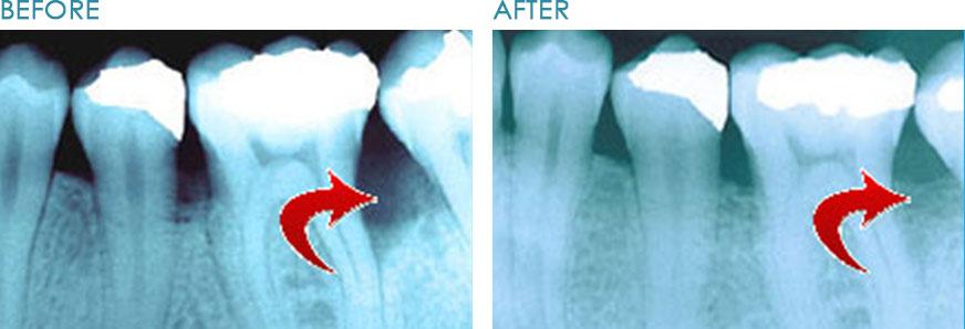 Bone-Regeneration-Naperville