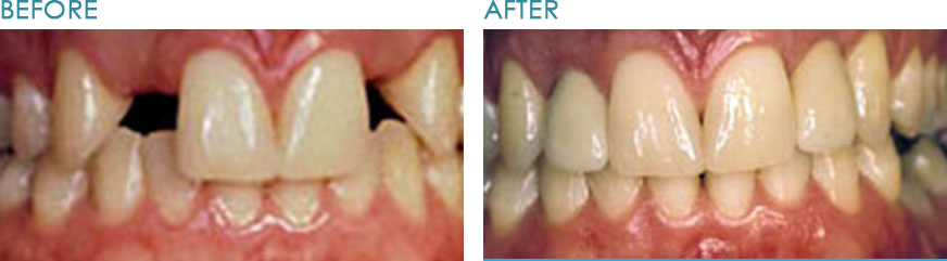 Dental-Implants-Naperville-IL