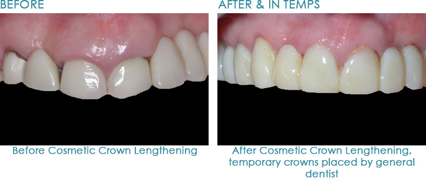 Dental-Implants-in-Naperville-IL