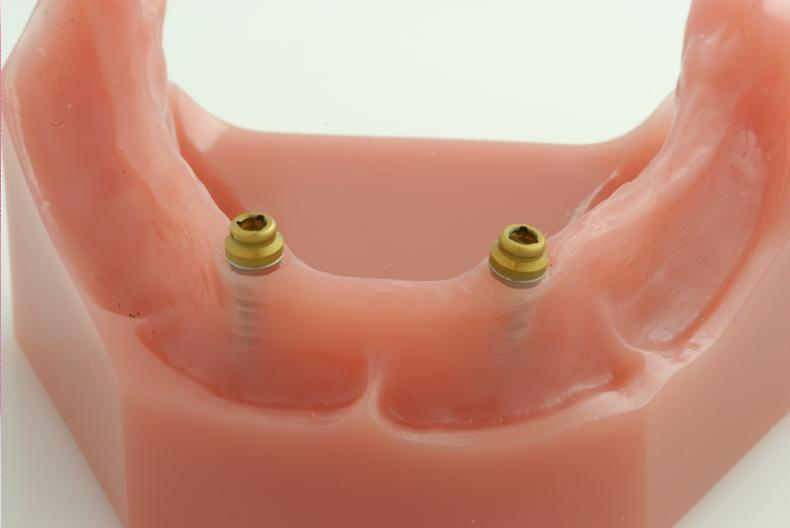Dentures Naperville