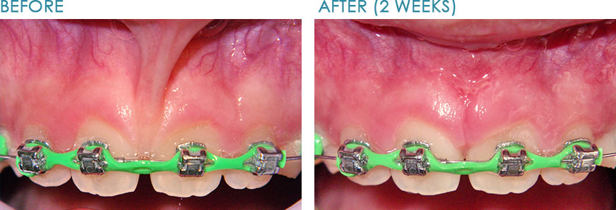 Frenectomy-Dentist-Naperville
