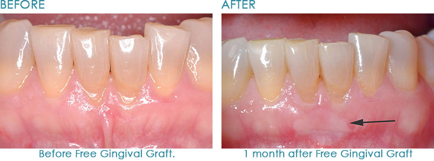 Gum-Disease-Treatment-Naperville