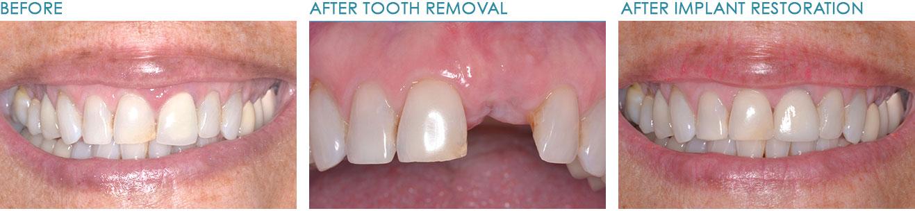 Implant-Dentist-Naperville