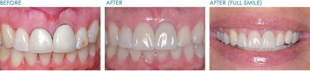 Naperville-Implant-Dentist